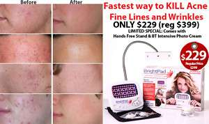 ACNE SOLUTION CURE BLUE RED PULSE LED LIGHT THERAPY NEW
